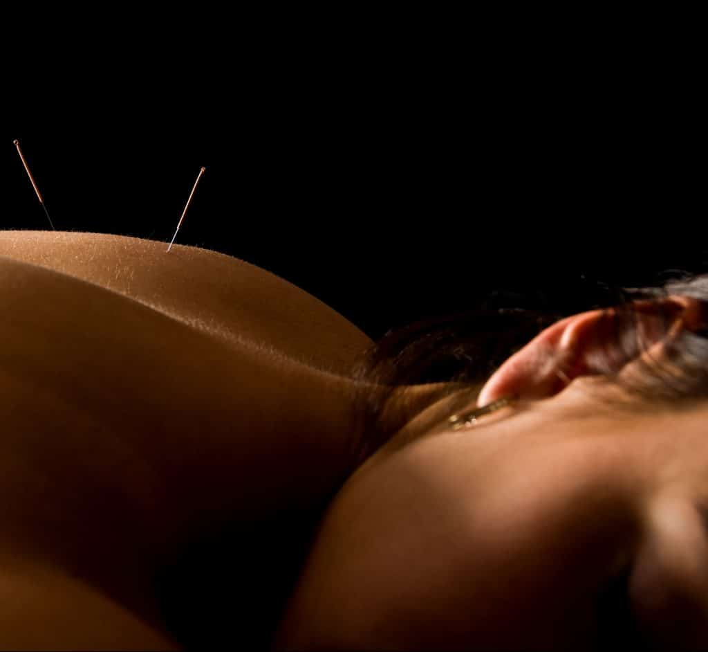 Woman Acupuncture Treatment