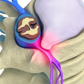 Sciatica Treatment Chiropractor